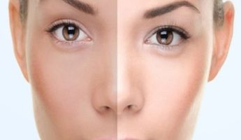 Compare Prices, Costs & Reviews for Skin Lightening in Trg Sv Stjepana