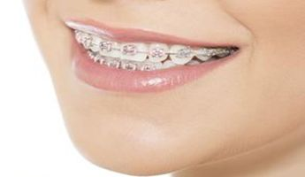 Compare Prices, Costs & Reviews for Braces in Russian Federation