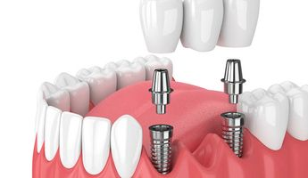 Compare Prices, Costs & Reviews for Dental Implant in Jordan