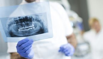 Compare Prices, Costs & Reviews for Dental X-Rays in Vienna