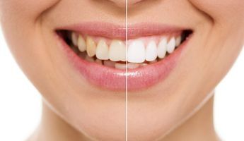 Compare Prices, Costs & Reviews for Teeth Whitening in South Korea