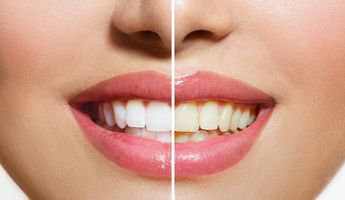 Compare Prices, Costs & Reviews for Veneers in Lebanon