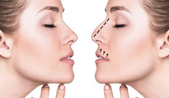 Compare Prices, Costs & Reviews for Septoplasty in Poland