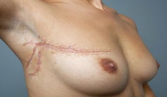 Compare Prices, Costs & Reviews for Breast Lumpectomy in Poland