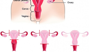 Compare Prices, Costs & Reviews for Hysterectomy in Rosario