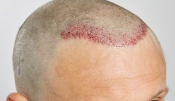 Compare Prices, Costs & Reviews for Hair Transplant in Lebanon