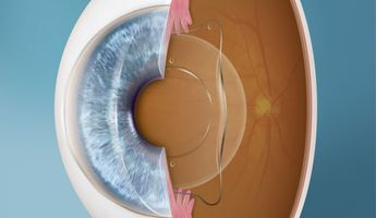 Compare Prices, Costs & Reviews for Implantable Contact Lens (ICL) in Poland