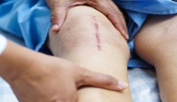 Compare Prices, Costs & Reviews for Knee Arthroplasty in Daet