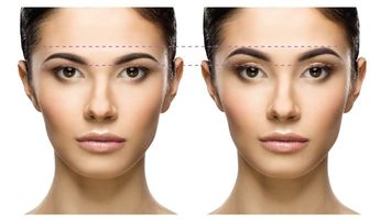 Compare Prices, Costs & Reviews for Brow Lift in Poland