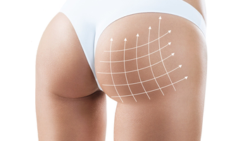 Compare Prices, Costs & Reviews for Butt Lift in Costa Rica