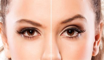 Compare Prices, Costs & Reviews for Double Eyelid Creation in Poland