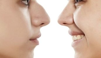 Compare Prices, Costs & Reviews for Nose Surgery in Radial Francisco J Orlich