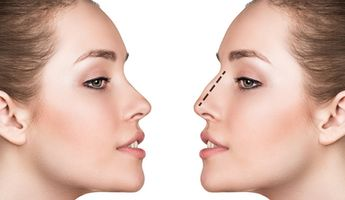 Compare Prices, Costs & Reviews for Rhinoplasty in Mexico