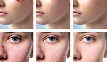 Compare Prices, Costs & Reviews for Scar Removal in Phuket