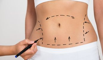 Compare Prices, Costs & Reviews for Tummy Tuck in Lebanon