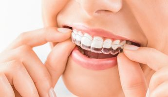Compare Prices, Costs & Reviews for Invisalign in Radial Francisco J Orlich