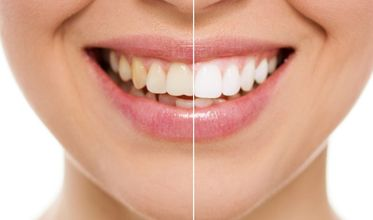10 Best Clinics For Teeth Whitening In Mexico 2020 Prices