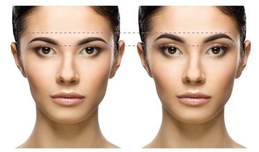 10 Best Clinics For Brow Lift In South Africa 2020 Prices